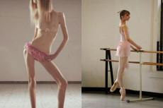 danza-anoressia